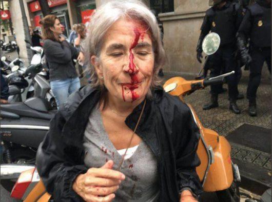 Donna con il viso insaguinato dopo gli scontri con la Polizia
